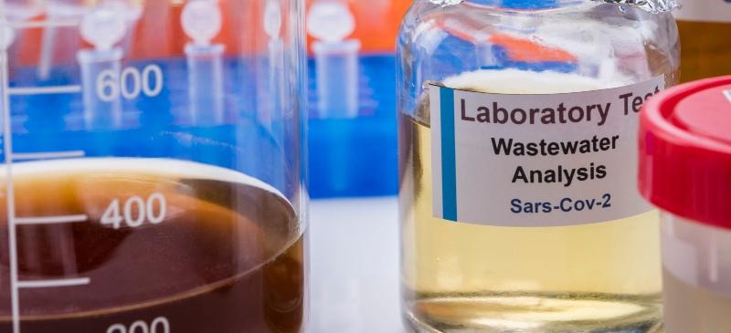 Agua residual en un laboratorio de covid 19